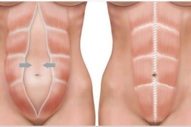 Qué es la diástasis abdominal, la dolencia que llevó a Andrea del Boca al hospital