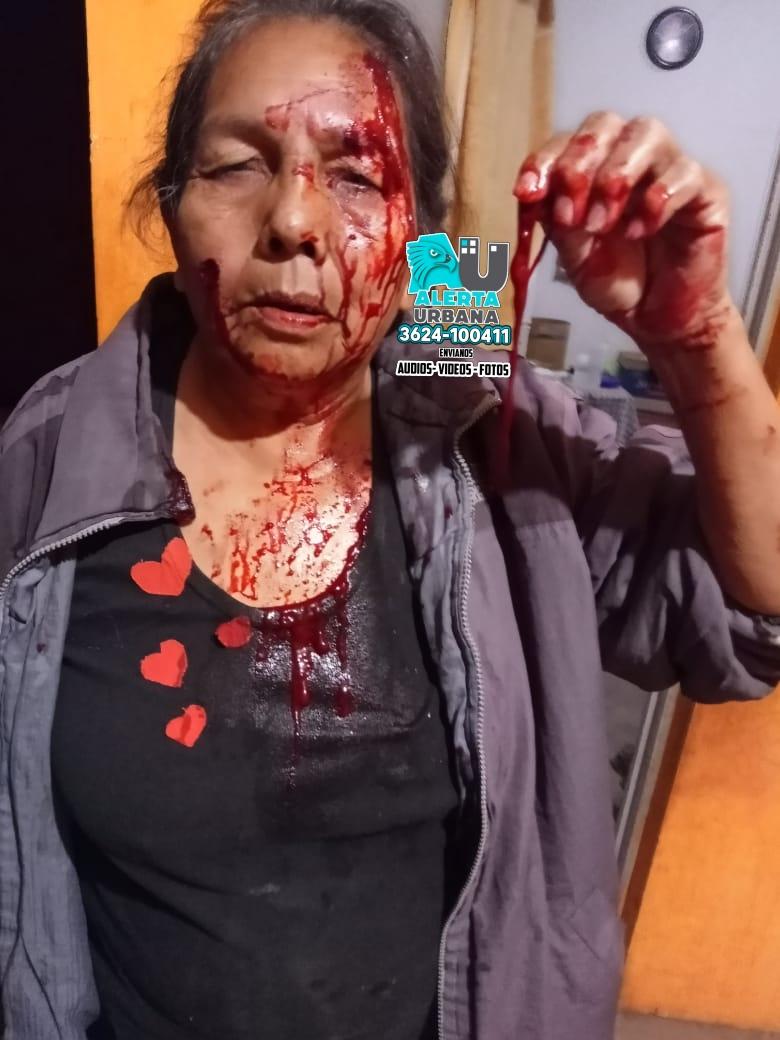 Sáenz Peña: Confuso hecho de violencia involucra a la comunidad aborigen