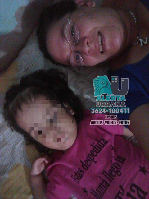 Madre pide ayuda para su hija con discapacidad