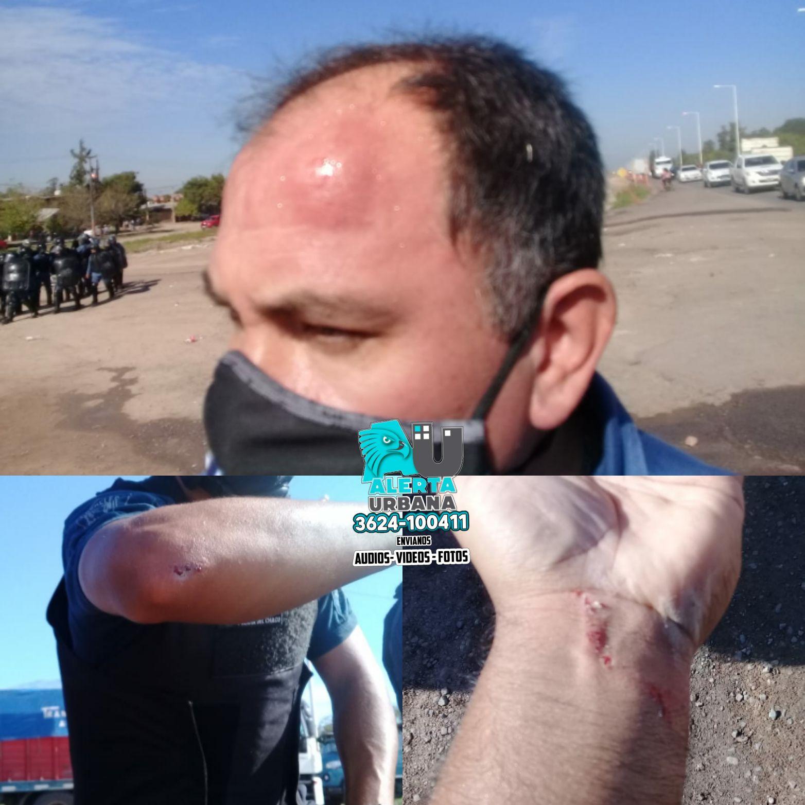 Resistencia: cuatro policías lesionados en piquete sobre ruta Nro. 11
