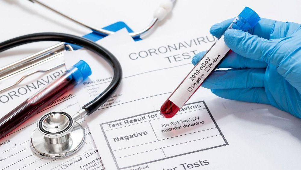 ¿Cuánto cuesta hacerse el test de Covid-19?.