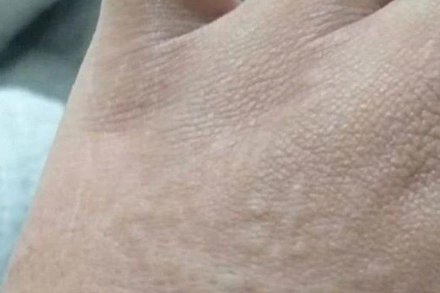Covid: cuáles son las lesiones en la piel asociadas a la enfermedad