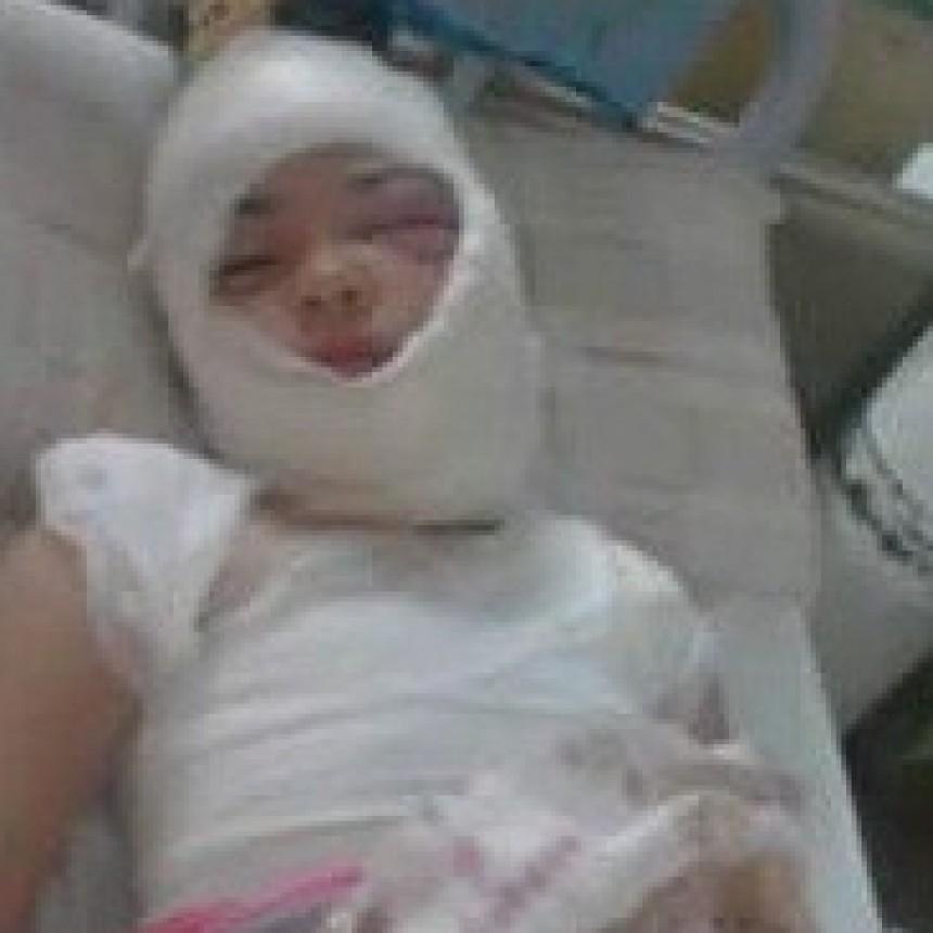 Las Breñas: Nena con quemaduras graves es trasladada al Hospital Pediátrico de Resistencia.