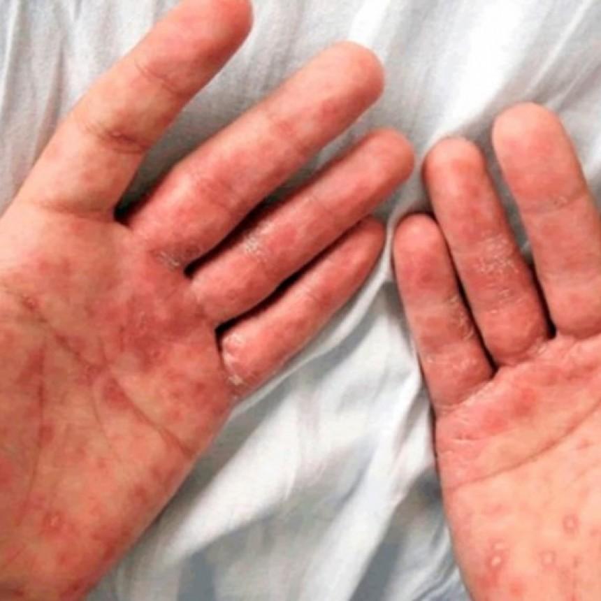 Bloque de Educación Sexual: alerta por aumento de casos de Sífilis