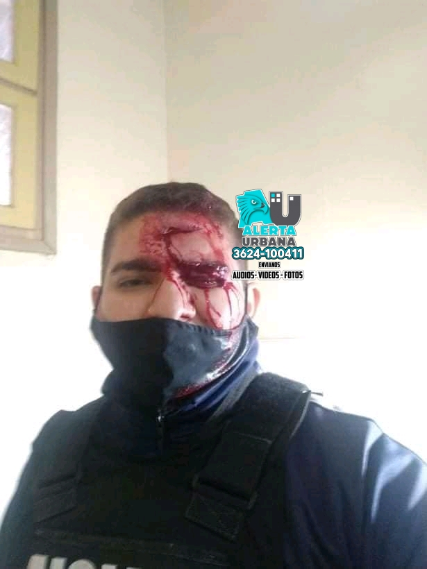 Homicido en Gral. San Martín, 17 policías lesionados, 5 de ellos detenidos