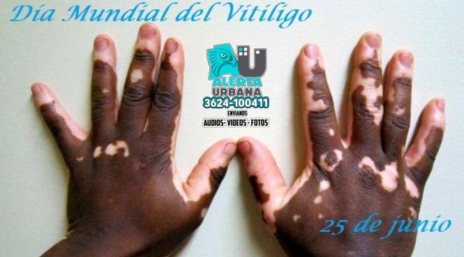 25 de Junio: Día mundial del Vitiligo