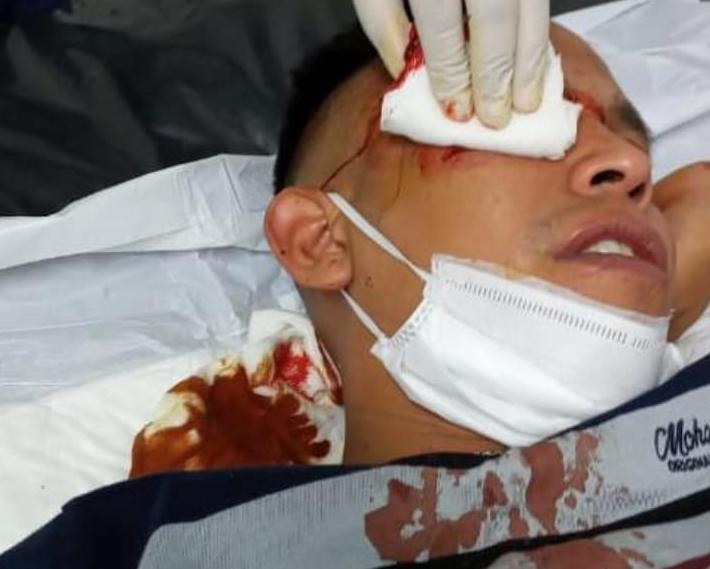 Barranqueras: golpearon y le robaron el arma a un policía