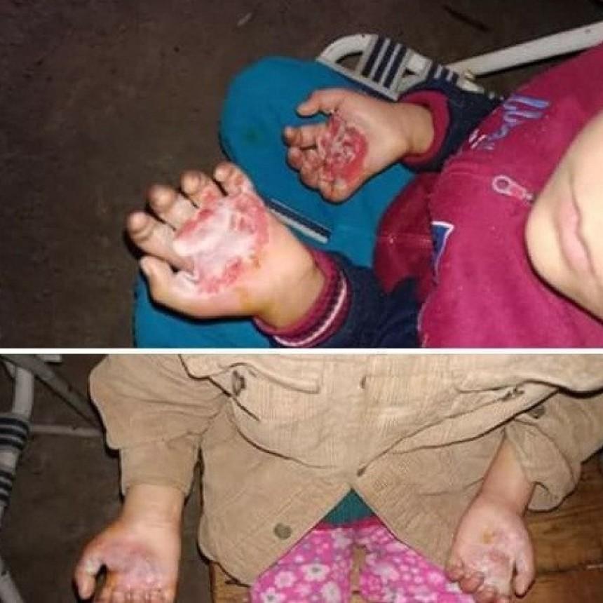 Violencia Familiar: dos hermanitos con las manos quemadas por portarse mal