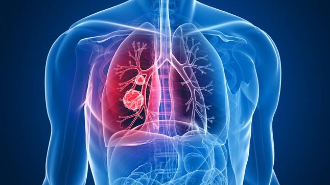Científicos descubrieron cómo se origina el cáncer de pulmón en pacientes no fumadores
