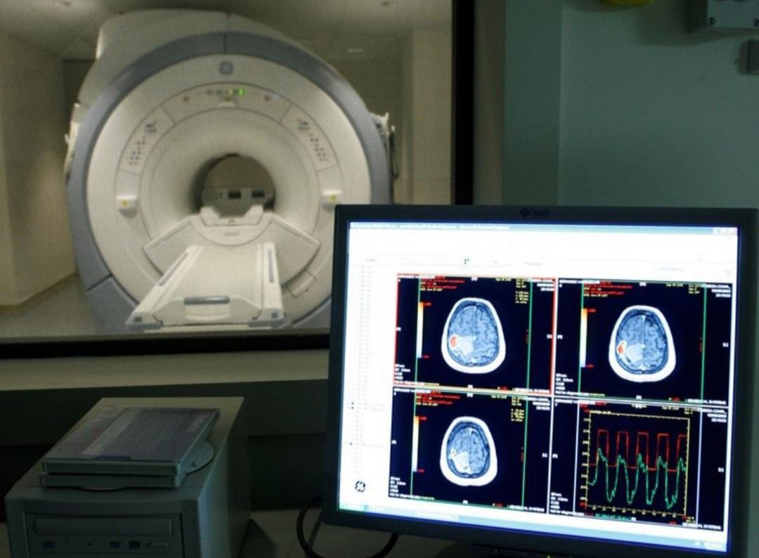 """Alzheimer: crean un """"minicerebro"""" para analizar factores de riesgo genético"""