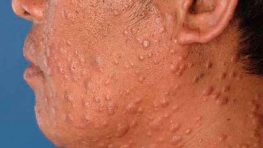 Comenzó la Campaña Nacional de Prevención de la Lepra