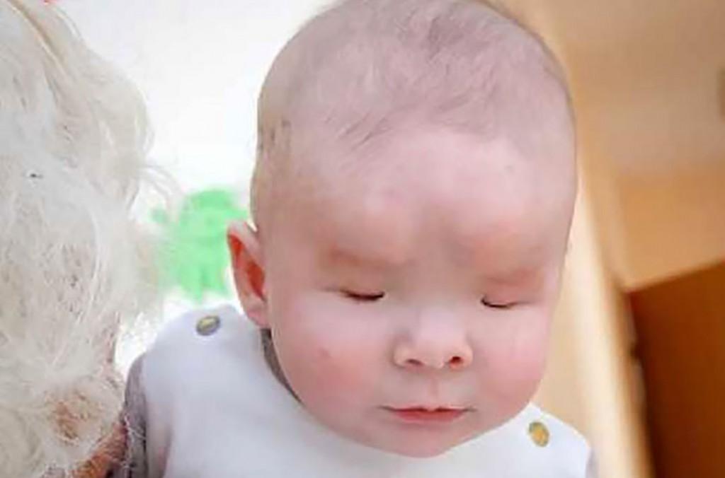 Sasha, el bebé que nació sin ojos, fue abandonado y encontró un final feliz