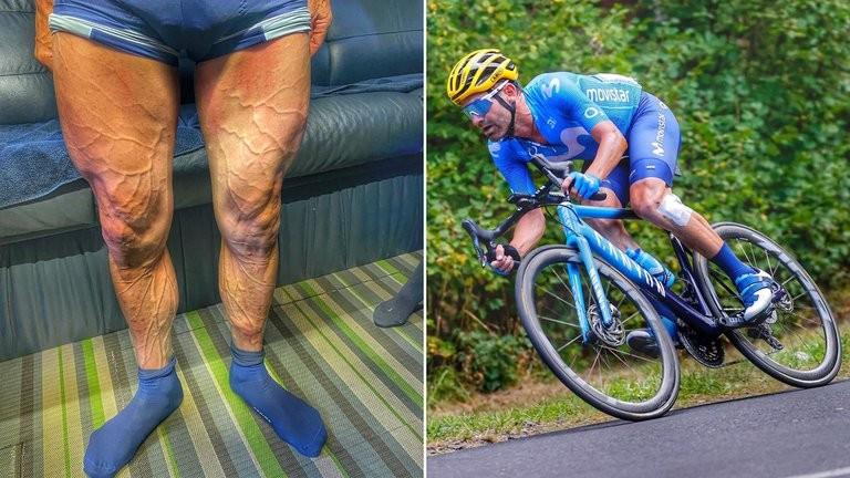 Impactante foto de las piernas de un ciclista después de disputar siete etapas en la Vuelta a España