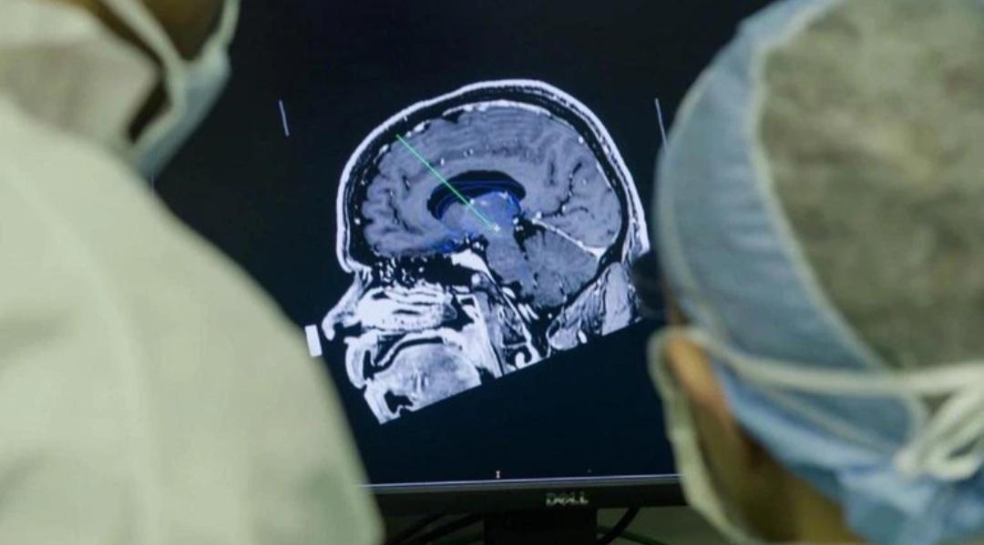 Un implante cerebral que elimina los pensamientos negativos