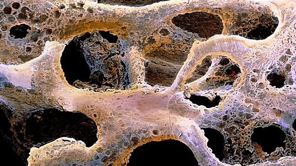 Estiman que se producen 90 fracturas de cadera diarias por osteoporosis sin diagnosticar