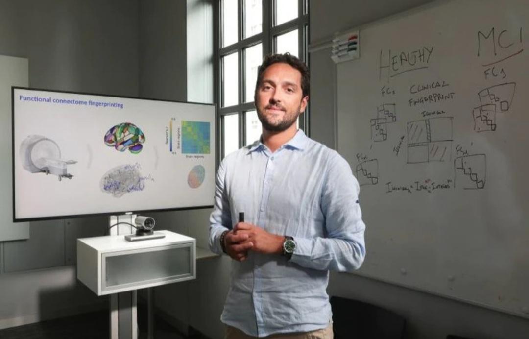 """El cerebro de cada persona tiene su propia """"huella digital"""""""