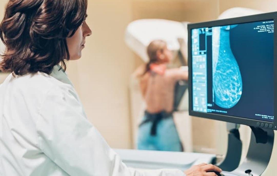 Chaco cuenta con 17 mamógrafos y en el Perrando se hacen 30 exámenes por día