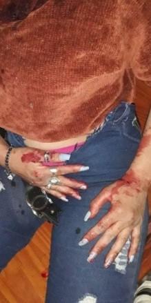 Violentas agresiones contra una joven por parte de su ex pareja y tres mujeres más