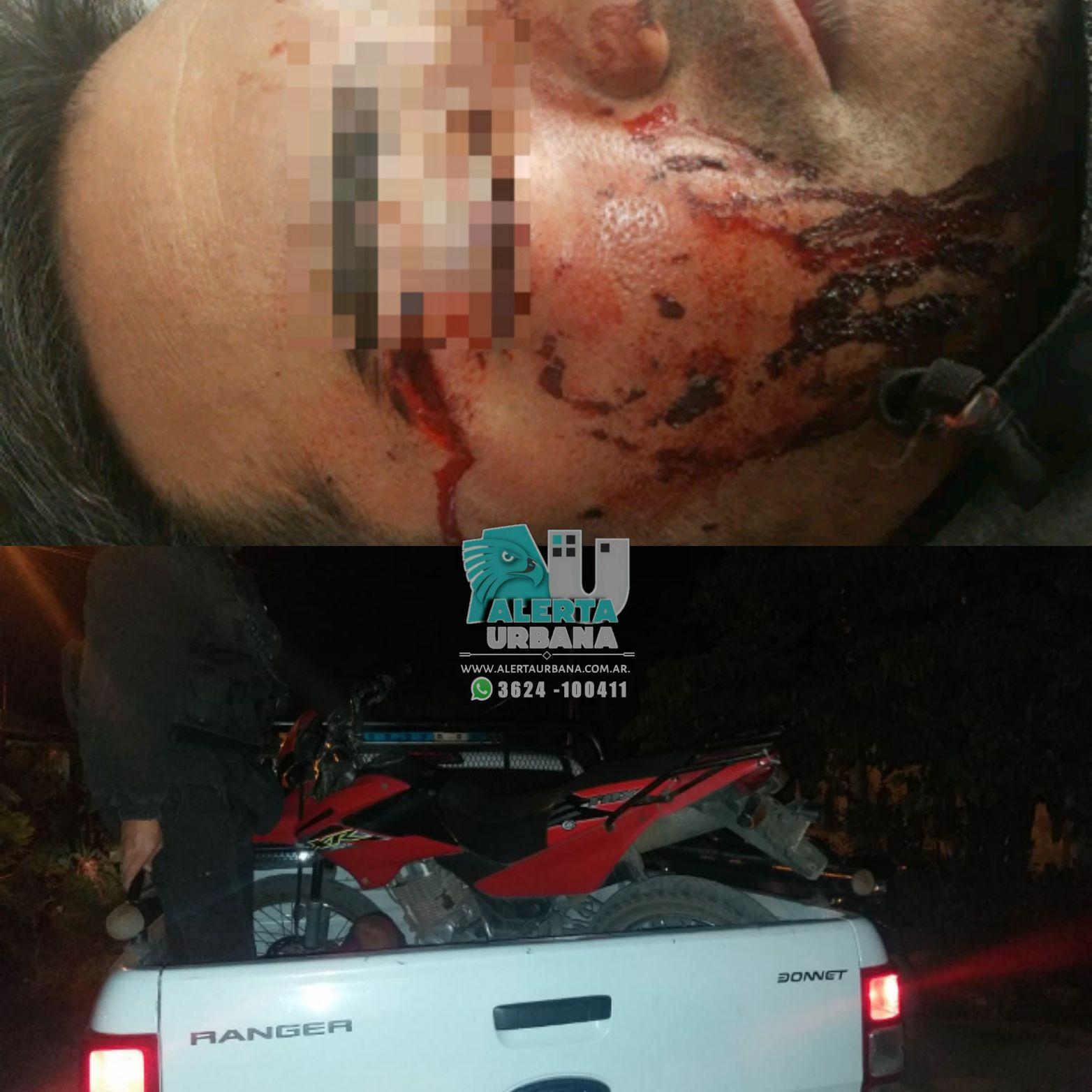 Resistencia: un policía resultó lesionado tras el robo de una motocicleta oficial